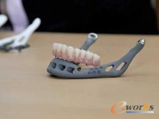 3D打印的下颌骨