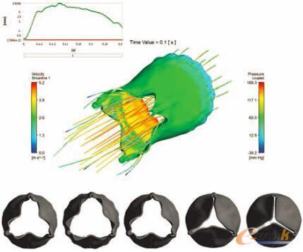 图2 流固耦合追踪心脏瓣膜的位移