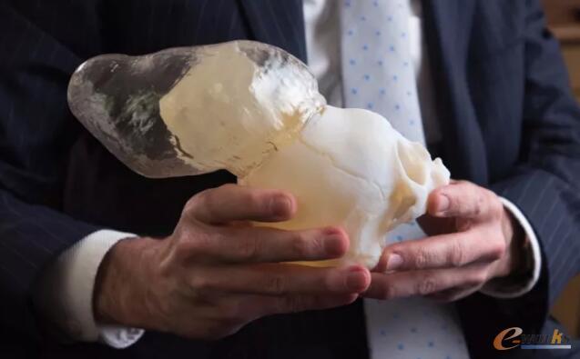 儿童外部大脑物质的3D打印外科模型